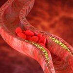 doppler tętnic szyjnych